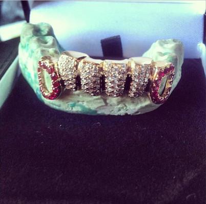 Светлана Лобода озолотит шесть своих зубов