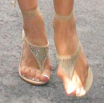 Косточки на стопах или шишки на ногах  Стопа  Лечение