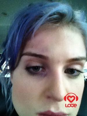 Келли Осборн в самолете заработала синяк под глазом